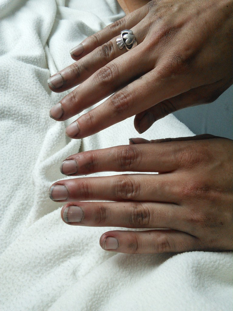 Mini Classic SPI 1995 minifrogs Erbsle schmutzige Hände